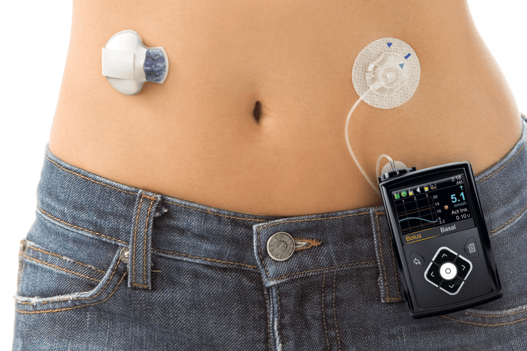 Artificial Pancreas | WEXT Community
